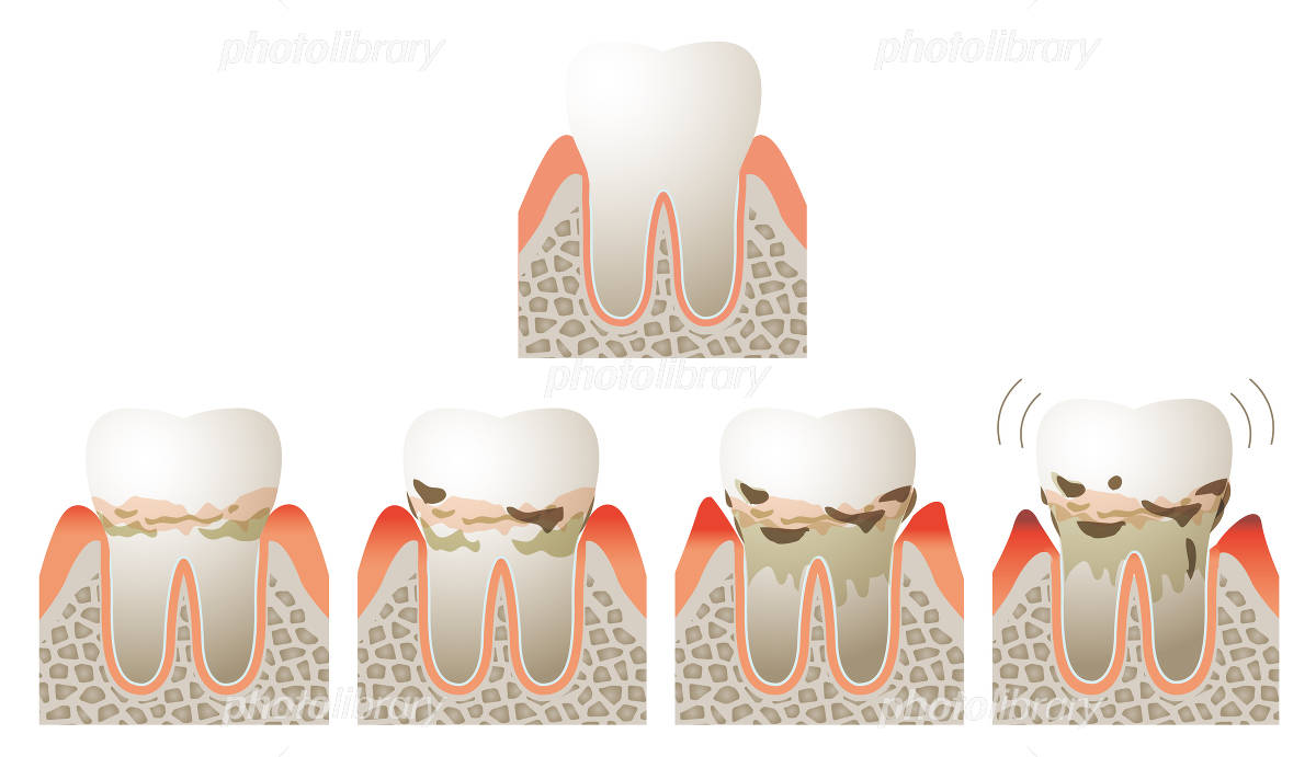 Progression image of the gums of the cross-section and periodontal disease イラスト素材