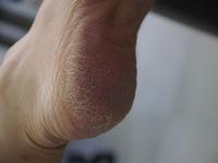 Cracking of heel due to drying Stock photo [2257756] Heel