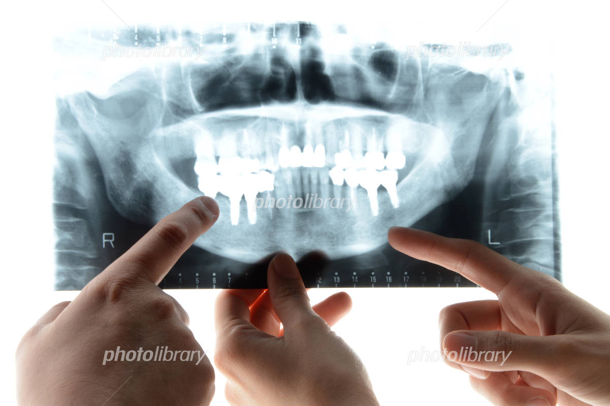 Dentist View X-ray Photo