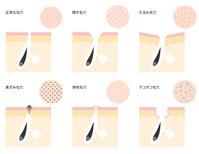 pores [4580830] pores