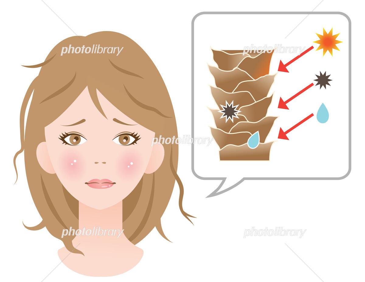 キューティクルケア 髪の傷んだ女性 イラスト素材 [ 6385617 ...