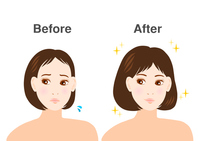 ID:4602511 女性 悩み 薄毛 イラスト before after