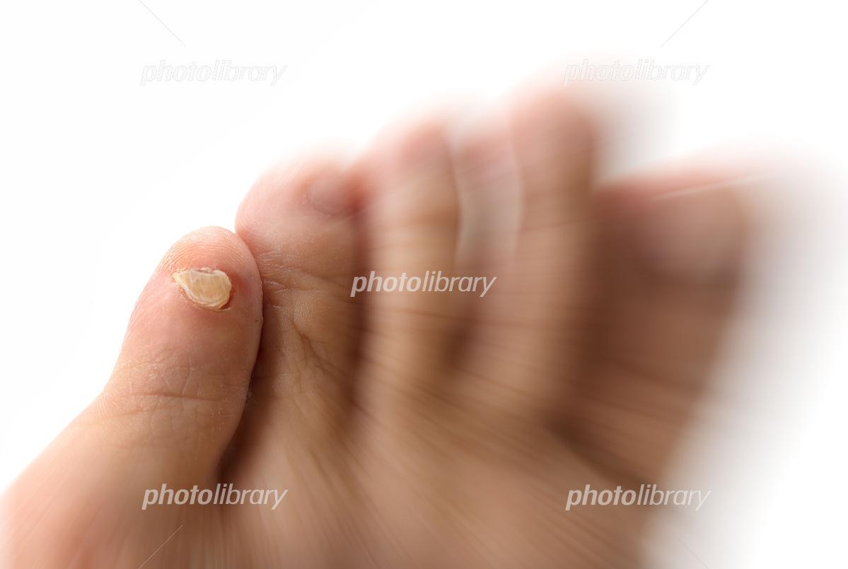 爪 親指 足 が 剥がれ た の の