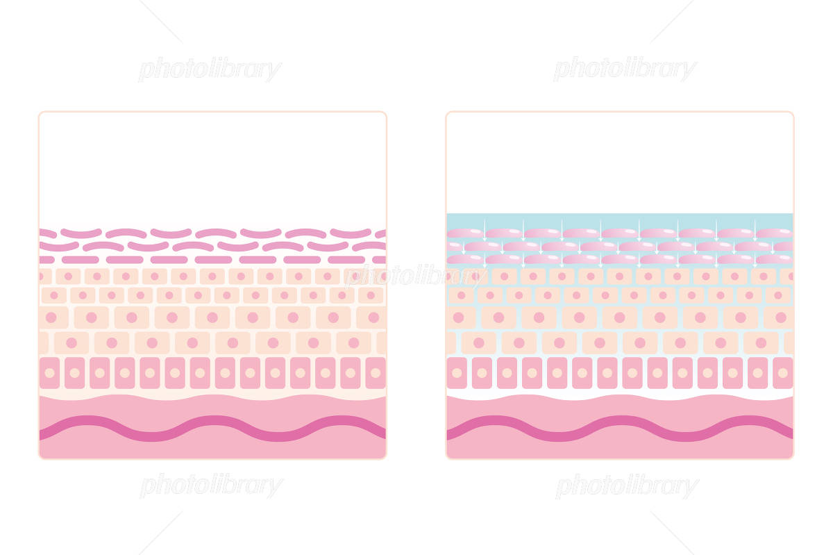cross-sectional view of the skin lotion has penetrated イラスト素材