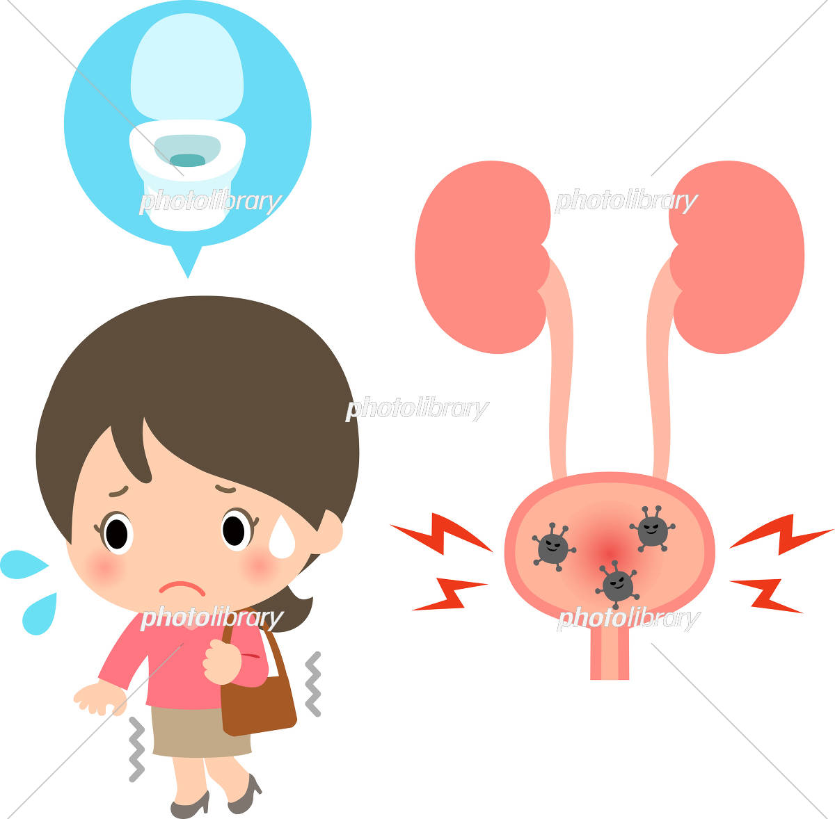 膀胱炎のイラスト