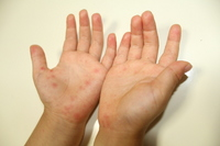 Hand-foot-and-mouth disease Stock photo [2745085] Kids