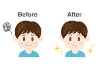 Men acne illustrations before after [4154197] An