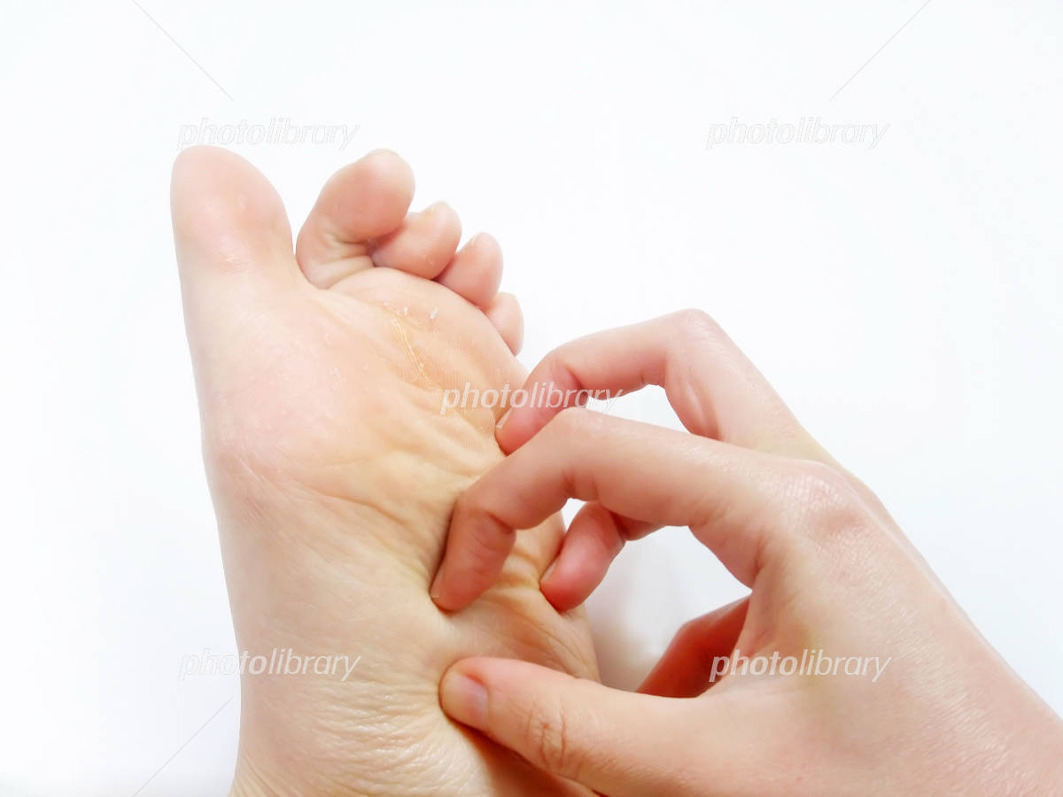 Itching of the foot Photo