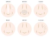 pores [4622796] pores