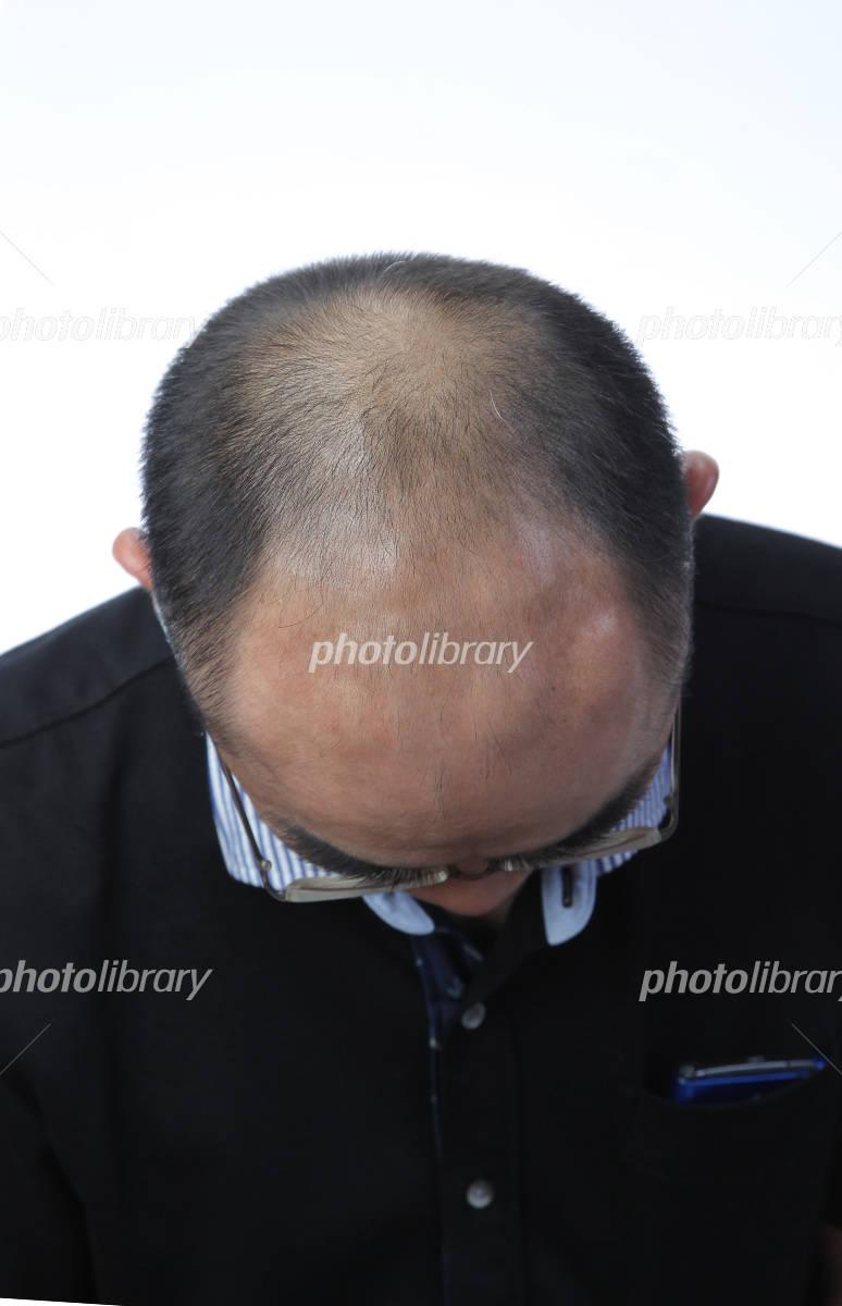 Hair is thin man after three months AGA effect Photo