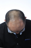 Hair is thin man after three months AGA effect Stock photo [2682202] Hair