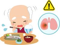 The choke during a meal elderly men and pneumonia image [3417170] Choke