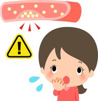 イラスト A woman who is surprised with a knob formed in a blood vessel(5353257)