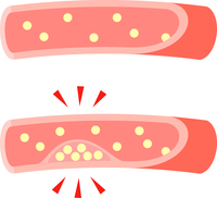 イラスト Blood vessels narrowed down with cholesterol accumulated(5353261)