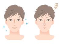 イラスト Male skin care nose darkening(5354381)