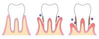 Periodontal disease [3633685] Tooth