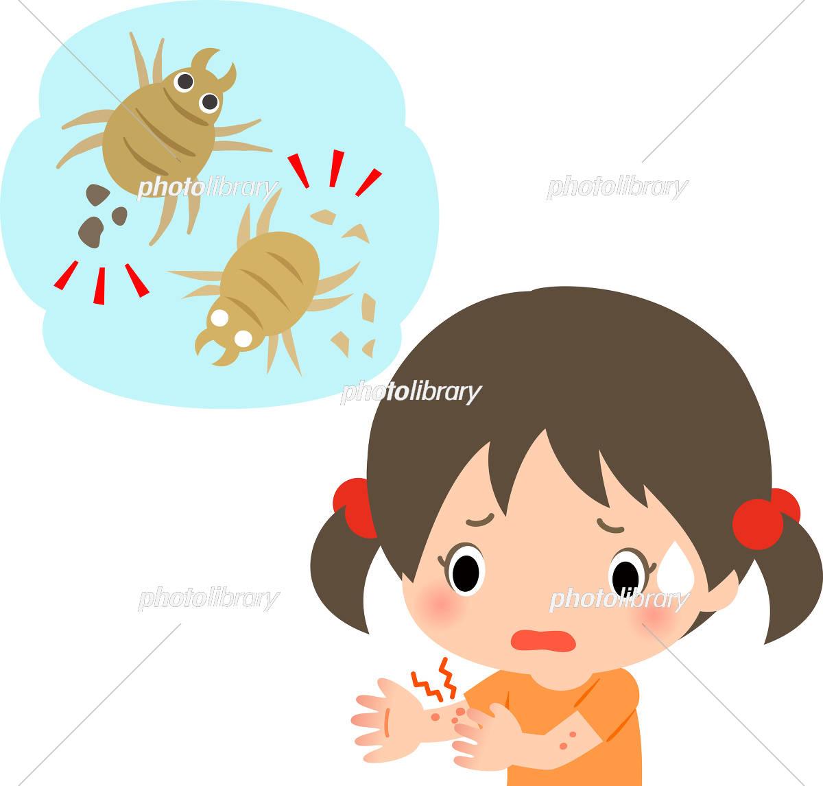ダニ 湿疹