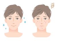 イラスト Men Acne Before After(5363357)