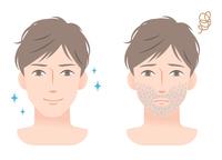 イラスト Male Beard Before After(5363358)